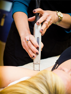 LaserHairRemoval